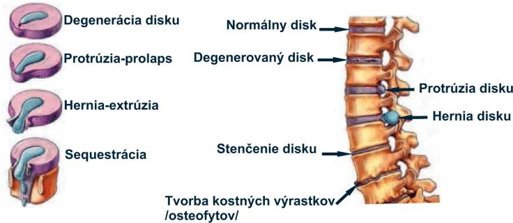 hernia disku